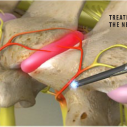 Cervical Facet Radiofrequency Neurotomy