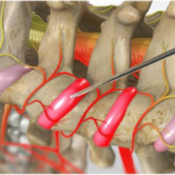 Facet Joint Injections (Cervical)2