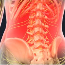 Lumbar Epidural Steroid Injection1