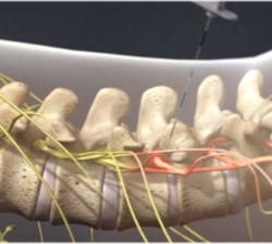 Lumbar Transforaminal Epidural Steroid Injection2
