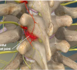 Radiofrequency Neurotomy of the Thoracic Facets1